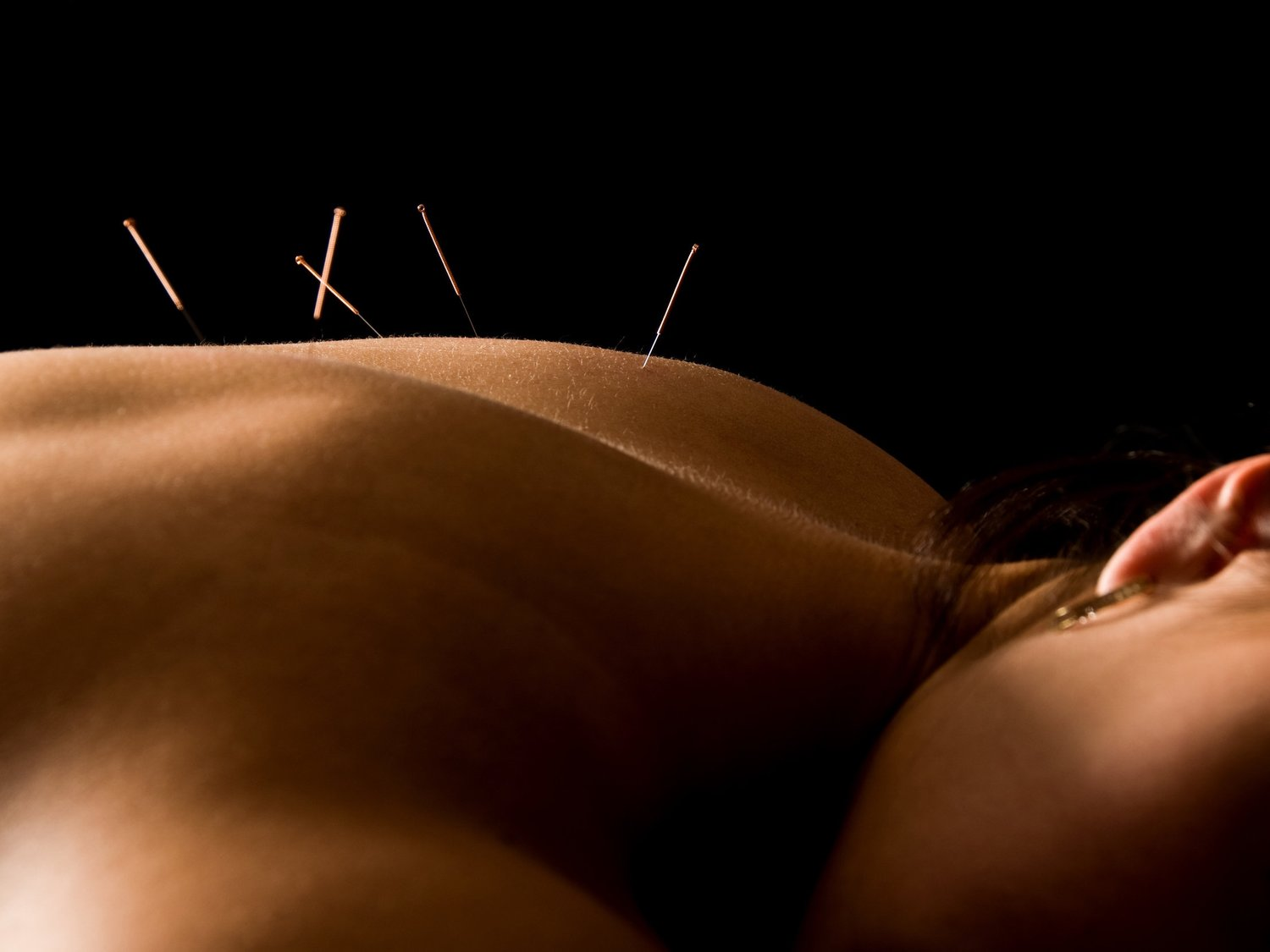 Acupuncture treatment to relief your back pain